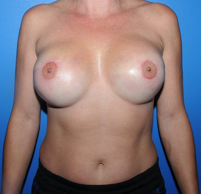 Areola Tattoo After 1