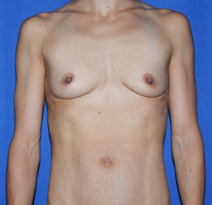 Breast Augmentation Before 14