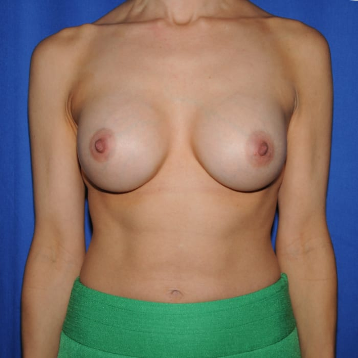 Breast Augmentation After 16