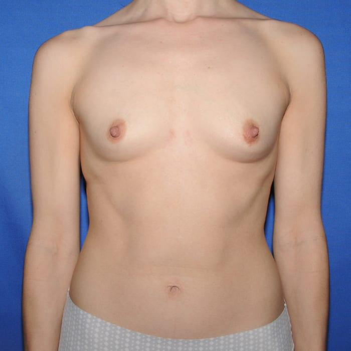 Breast Augmentation Before 16