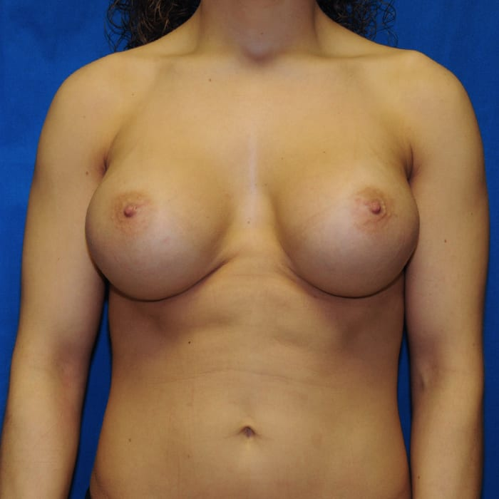 Breast Augmentation After 10