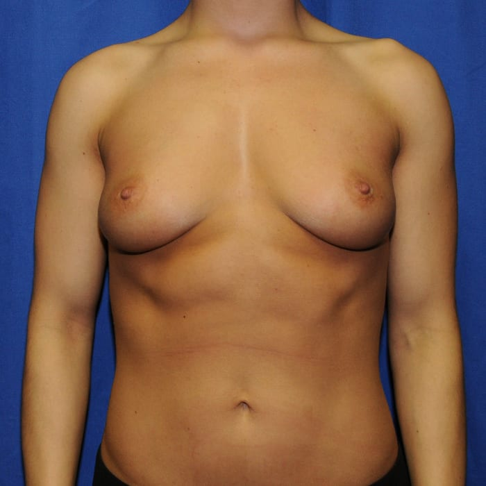 Breast Augmentation Before 10