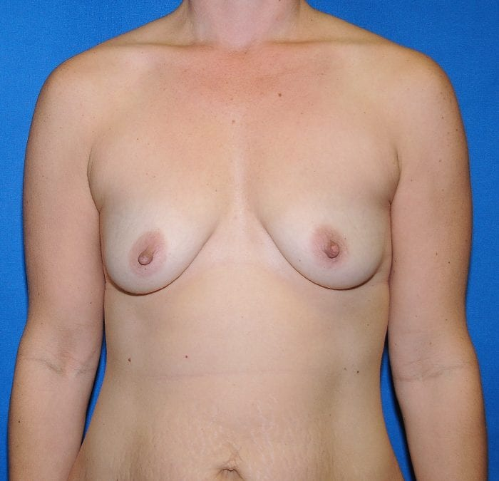 Breast Augmentation Before 13