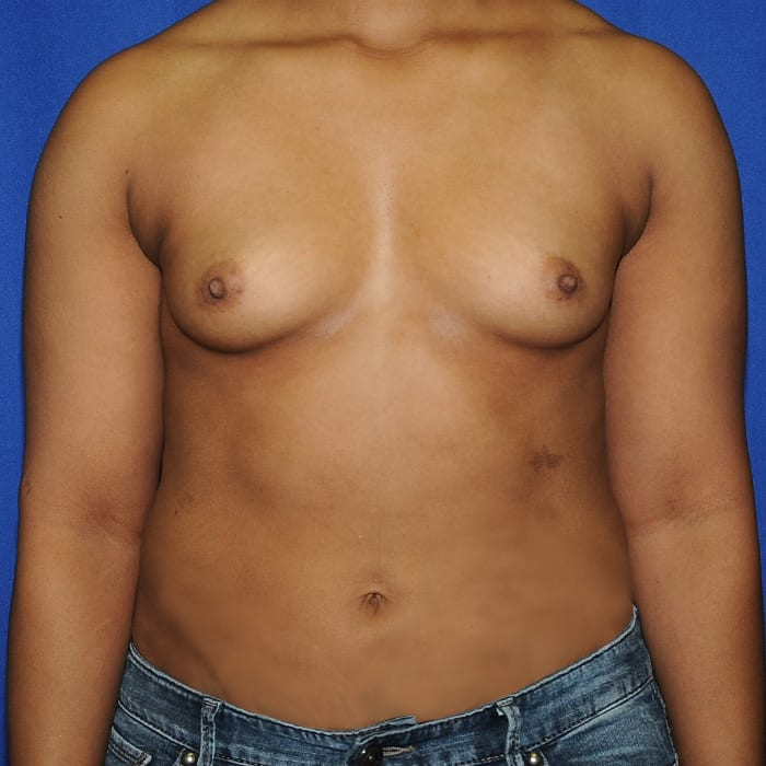 Breast Augmentation Before 11