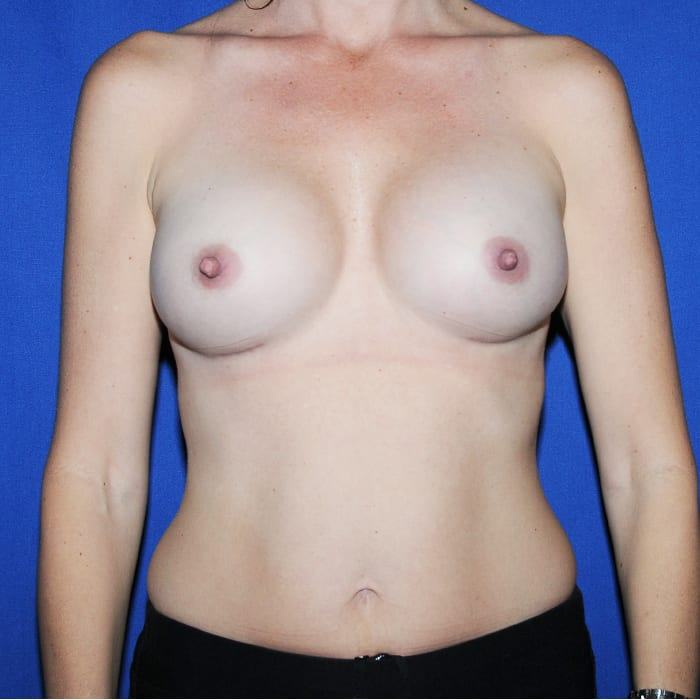 Breast Augmentation After 17