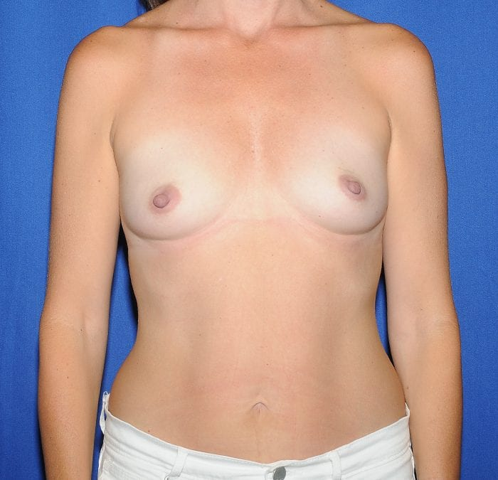 Breast Augmentation Before 17