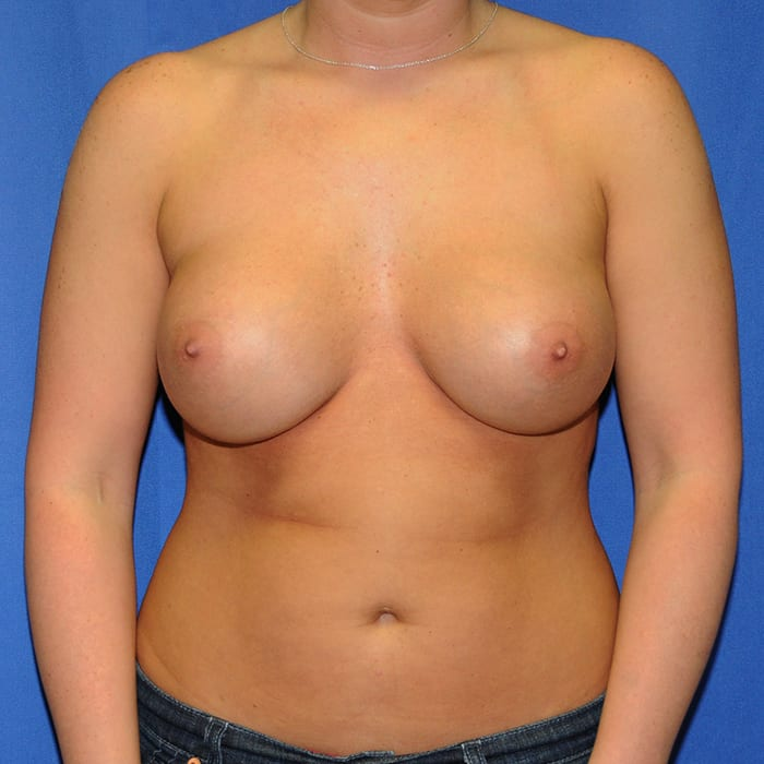 Breast Augmentation After 9