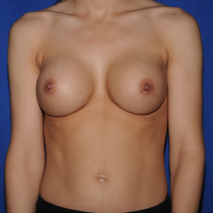 Breast Augmentation After 4