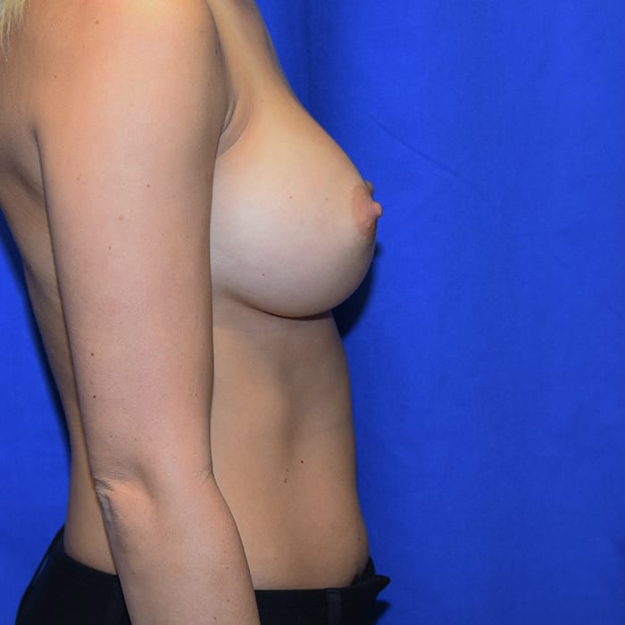 Breast Augmentation After 5