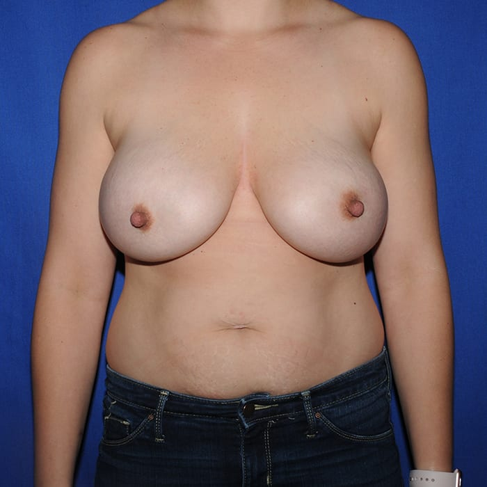 Breast Augmentation After 15