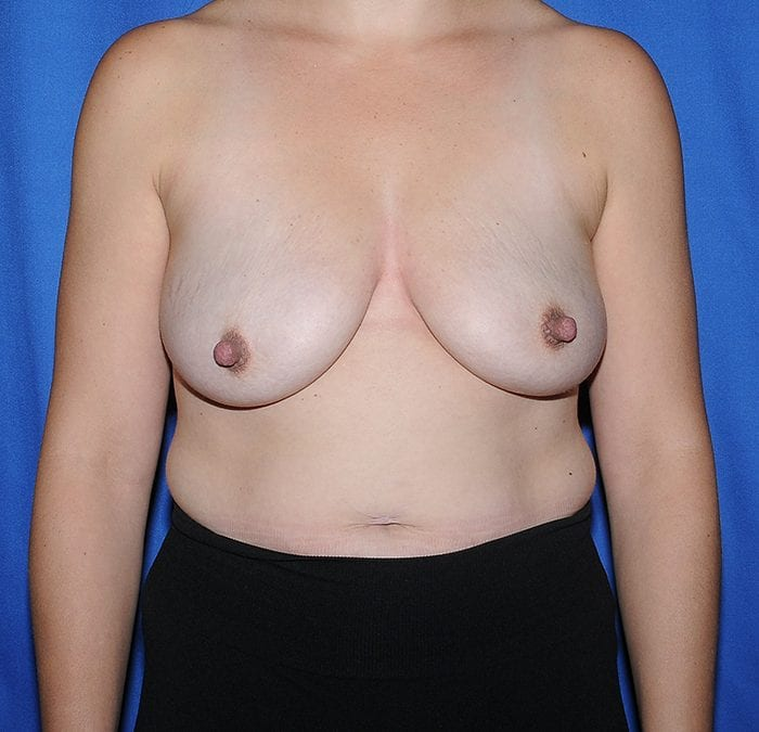 Breast Augmentation Before 15