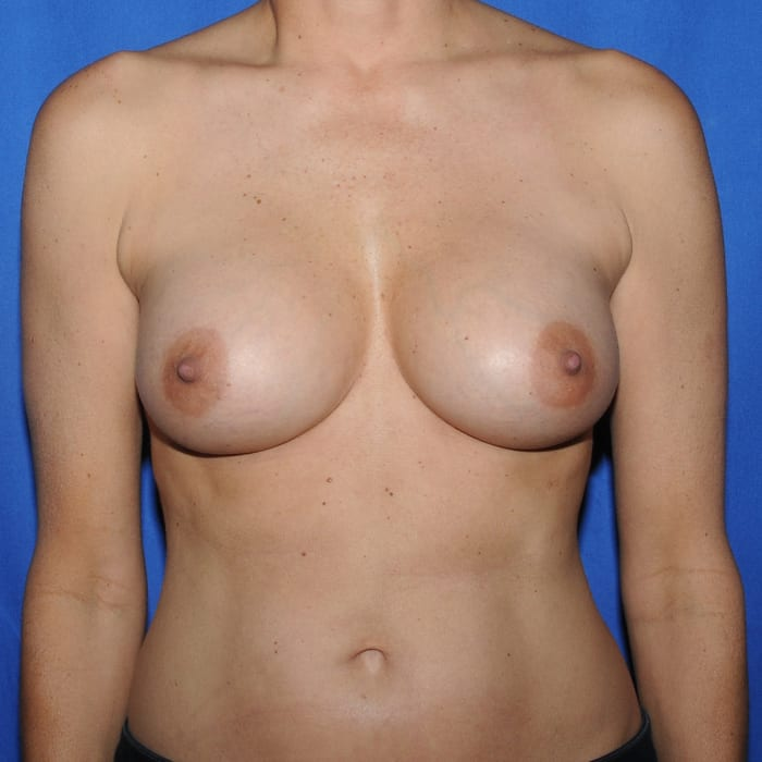 Breast Augmentation After 6