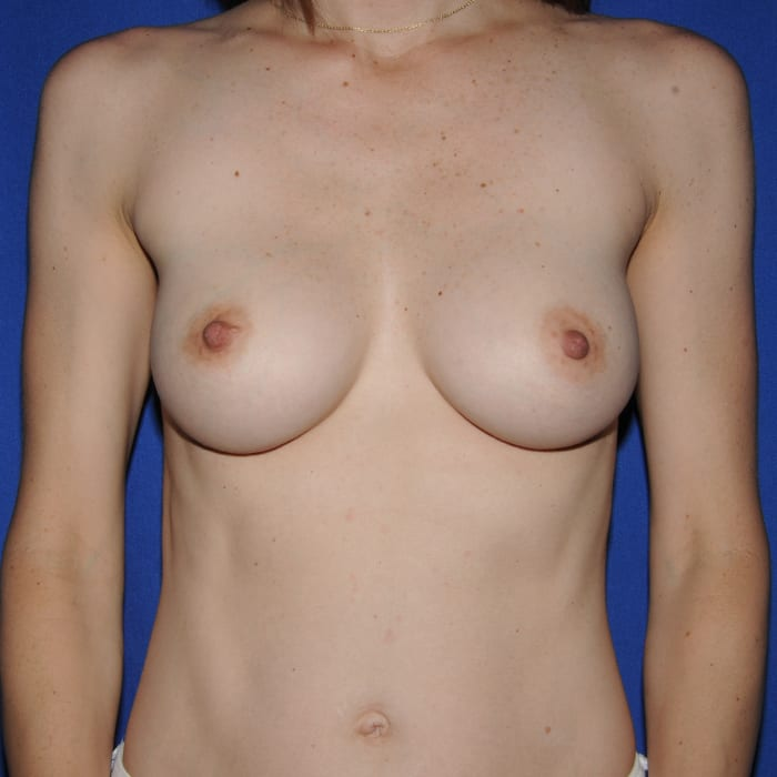 Breast Augmentation After 3