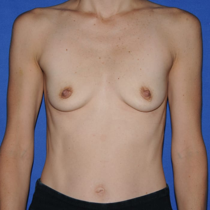 Breast Augmentation Before 3