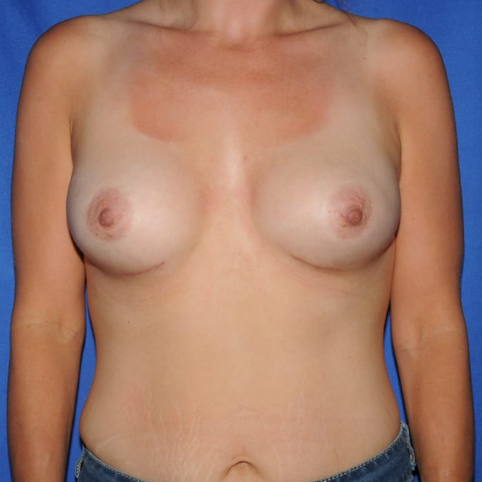 Breast Augmentation After 2