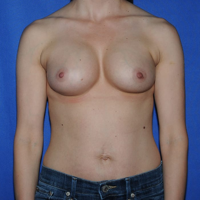 Breast Augmentation After 12