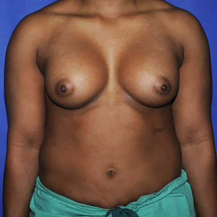 Breast Augmentation After 11
