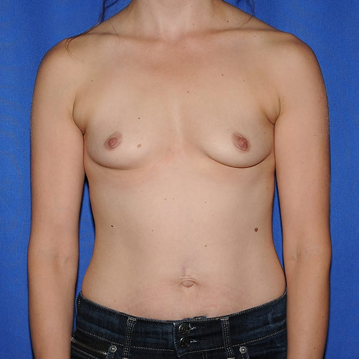 Breast Augmentation Before 12