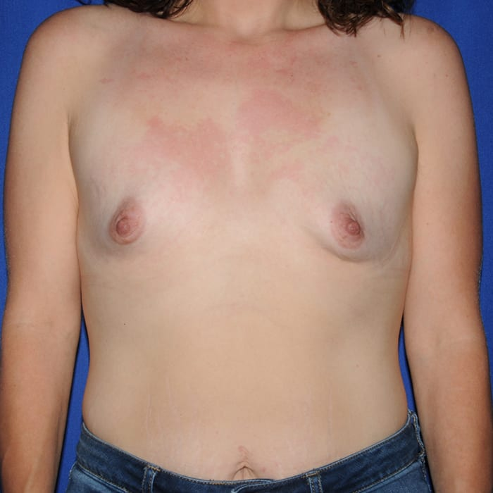Breast Augmentation Before 2