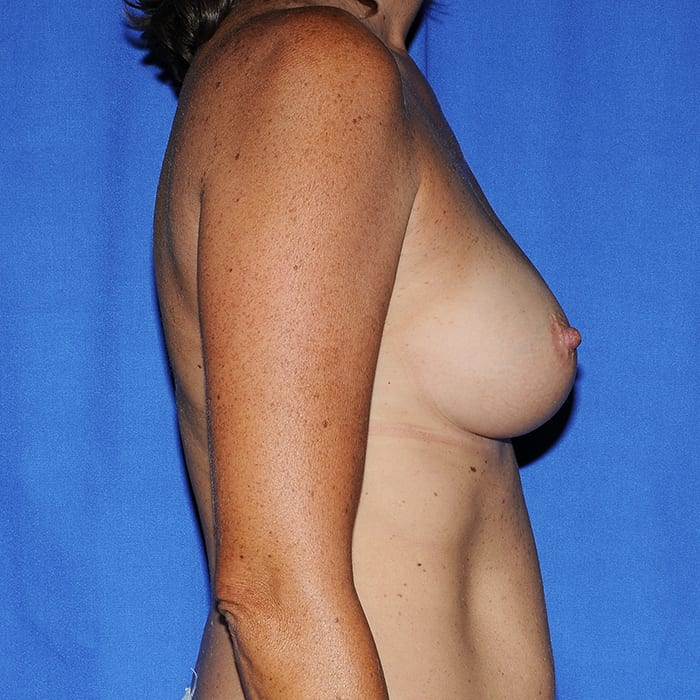 Breast Augmentation Before 1
